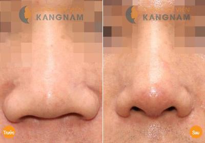 Đối tượng nào nên thu hẹp cánh mũi? 3