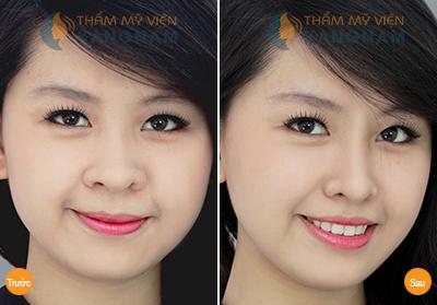 Nâng mũi không cần phẫu thuật ở đâu tốt tại Hà Nội