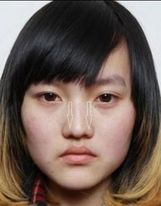Mũi to và tẹt nên sửa bằng cách nào để dáng mũi đẹp tự nhiên?