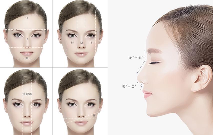 Nâng mũi hoàn toàn bằng sụn tự thân 1