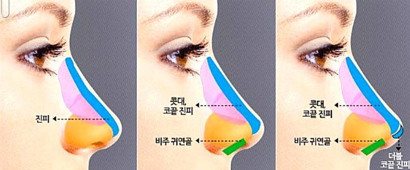 Nâng mũi Kangnam's Perfect Sline - Mũi đẹp toàn diện, vĩnh viễn 6