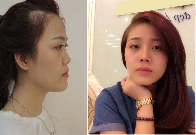 Nâng mũi Kangnam's Perfect Sline - Mũi đẹp toàn diện, vĩnh viễn 3