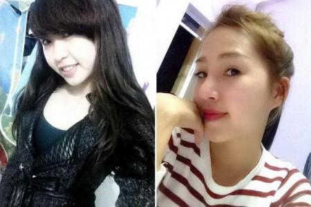 Nâng mũi Kangnam's Perfect Sline - Mũi đẹp toàn diện, vĩnh viễn 4