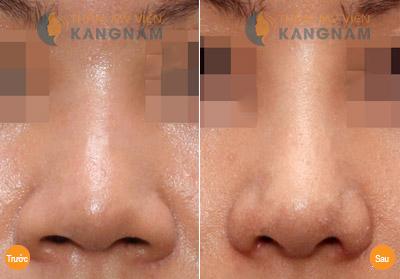 Cách làm mũi nhỏ lại bằng phương pháp tự nhiên 5