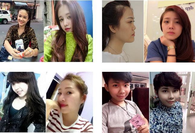 Nâng mũi ở Việt Nam có tốt và đảm bảo không? 3