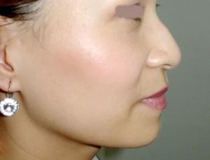 Sửa mũi gồ cần băng ép trong bao lâu? 1
