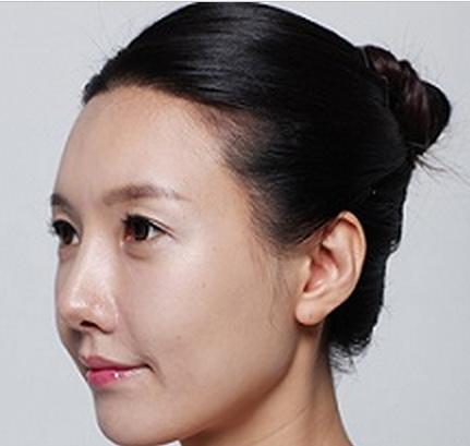 Kangnam có tháo sụn sau nâng mũi không? 1