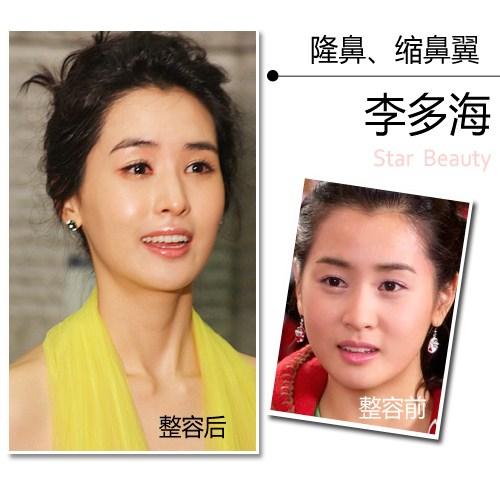 Sao Hàn trước và sau nâng mũi thay đổi như thế nào? 2