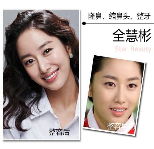 Sao Hàn trước và sau nâng mũi thay đổi như thế nào? 4