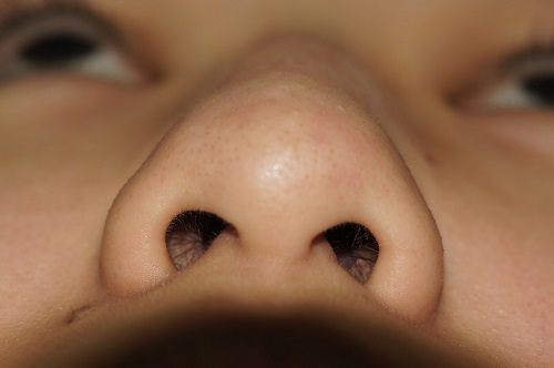 Có nên sửa đầu mũi to tròn không? 1
