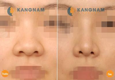 Có nên sửa đầu mũi to tròn không? 2