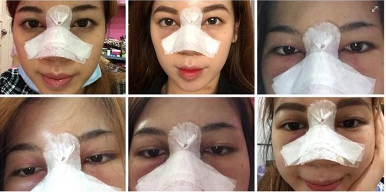 Nâng mũi có ảnh hưởng đến mắt 3