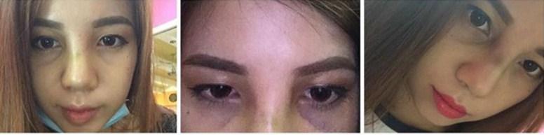 Nâng mũi có ảnh hưởng đến mắt 1