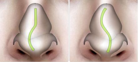 Mũi bị vẹo do sóng mũi