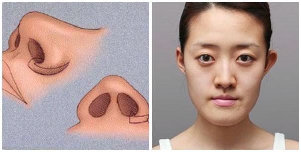 thu hẹp cánh mũi nội soi bao nhiêu tiền?2