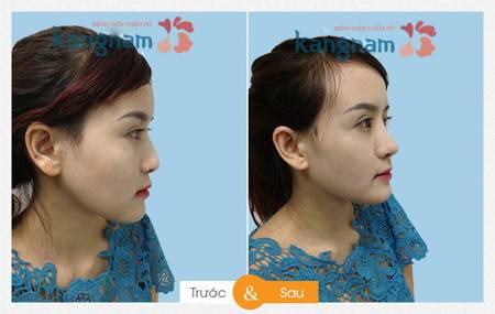 Hình ảnh sau nâng mũi tại kangnam