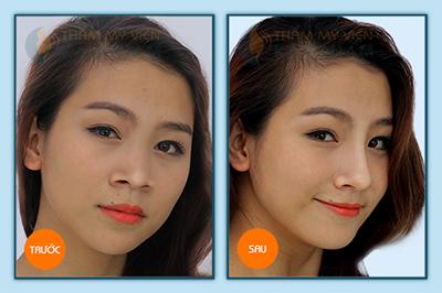Phẫu thuật nâng mũi được bao lâu?
