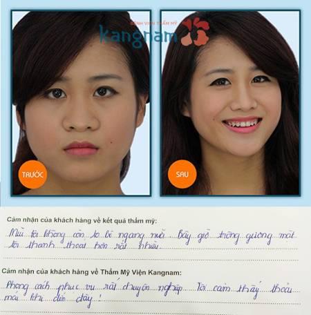 Kết quả của phẫu thuật thu gọn cánh mũi nội soi tại Kangnam