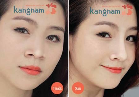 Kết quả phẫu thuật thu gọn cánh mũi nội soi an toàn tại Kangnam