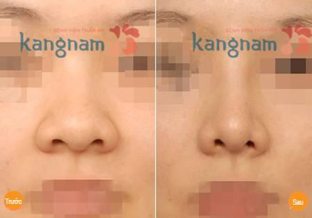 Kết quả phẫu thuật thu gọn cánh mũi nội soi tại Kangnam
