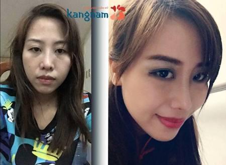 Kết quả sau khi sửa sống mũi bị lệch mũi bị vẹo vách ngăn tại Kangnam