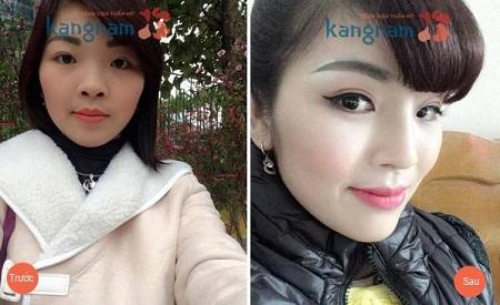 nang-mui-co-thay-doi-tuong-so-hay-doi-van-menh-khong6