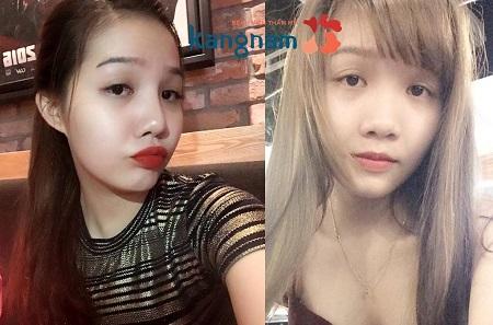 nang-mui-kangnams-perfect-s-line1