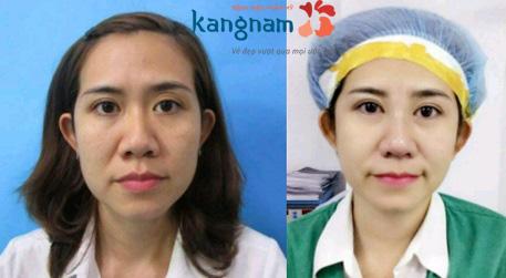 Phương pháp cuộn cánh mũi