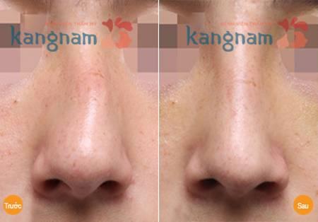 Kết quả sửa mũi bị vẹo vách ngăn, mũi lệch trái an toàn hiệu quả tại Kangnam