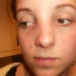 Mũi gãy là như thế nào? Gãy sống mũi có sửa được không?