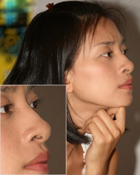 lỗ mũi bị to 1