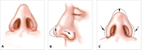 Lỗ mũi to phải làm sao? 3
