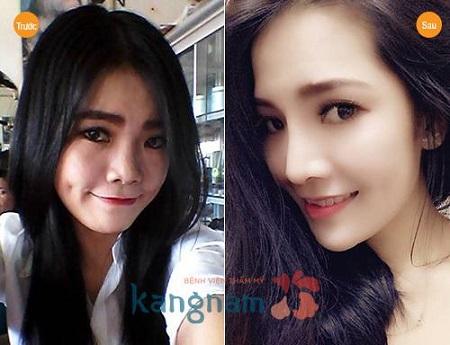 nang-mui-su-dung-duoc-bao-lau-co-duoc-vinh-vien-khong22