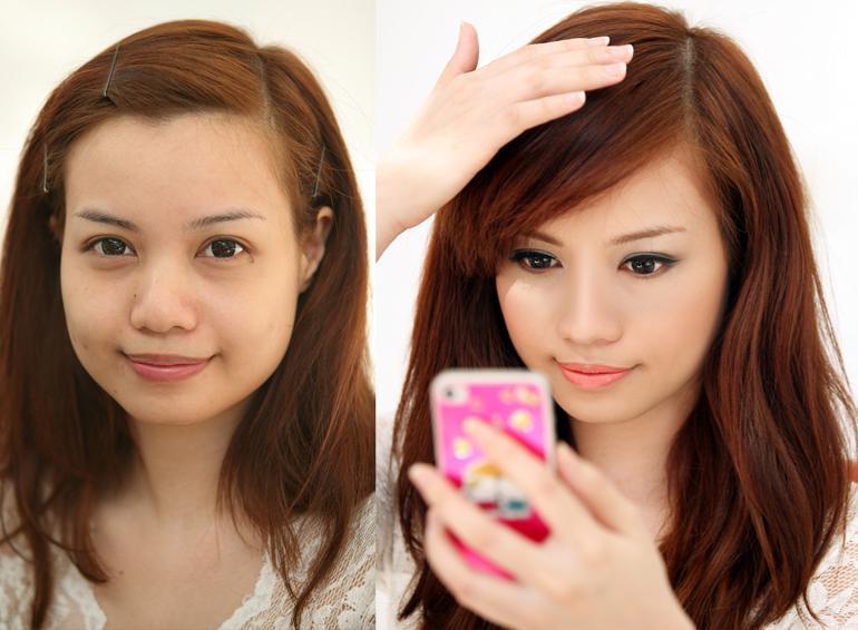 Mũi tẹt khiến gương mặt to hơn