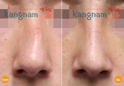 sửa mũi lệch, mũi vẹo 2