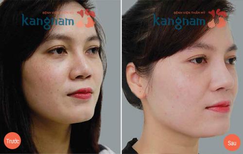 kết quả trước sau nâng mũi