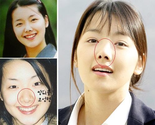 mỹ nhân hàn sửa mũi đẹp 2