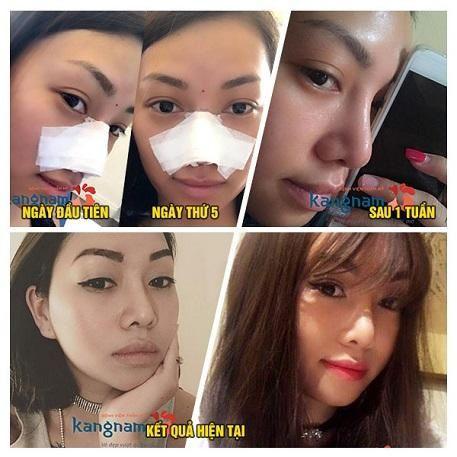 triệu chứng thường gặp sau nâng mũi1