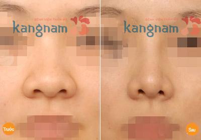 Thu nhỏ đầu mũi có nguy hiểm không