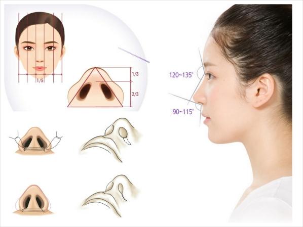 Cánh mũi to dày 2