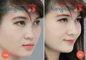 Nâng mũi bao lâu thì hồi phục để mũi đẹp tự nhiên?