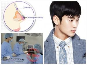 Tại Kangnam nâng mũi cho nam có đắt không?