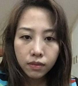 Tại Kangnam giá sửa mũi hỏng sau nâng là bao nhiêu?