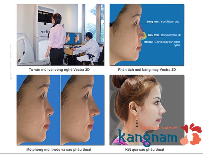 Nâng mũi có ảnh hưởng đến tướng số không