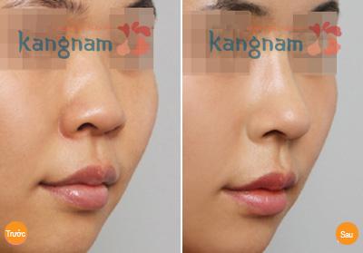 Nâng mũi không phẫu thuật giá bao nhiêu 2
