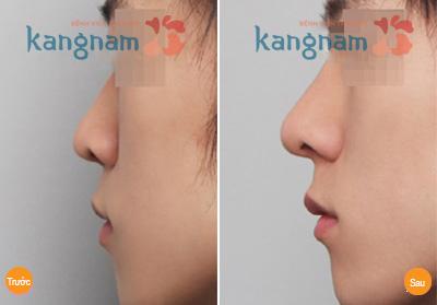 Nâng mũi không phẫu thuật giá bao nhiêu 3