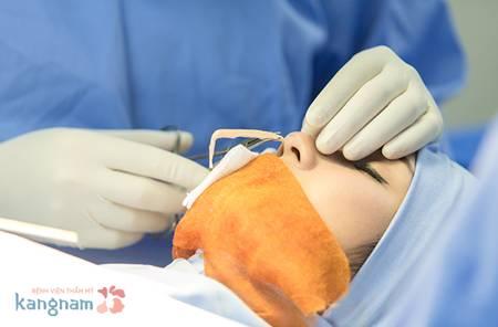 Phẫu thuật nâng mũi bao nhiêu tiền tại Kangnam