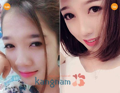 nang-mui-boc-sun-co-lam-mat-tham-my-cho-lay-sun-khong-2