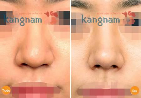 Kết quả phẫu thuật thu gọn đầu mũi nội soi tại Kangnam