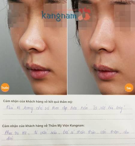 Kết quả thu nhỏ đầu mũi nội soi tại Kangnam